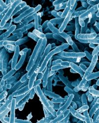 ECEX can protect against Legionnaires disease